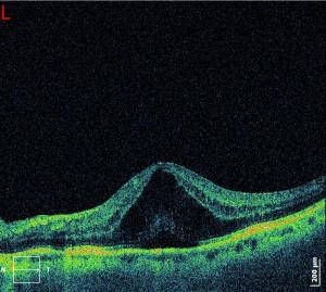 OCT: Cystoids macula Oedema (CMO)