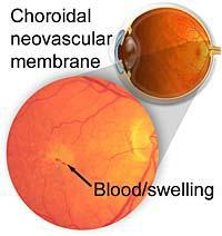 Age Related Macular Degeneration: Wet type