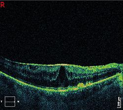 OCT with Epiretinal Membrane